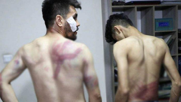 Dua Wartawan Afghanistan 'Dibuat Jera' di Sel Tahanan Taliban karena Liput Demonstrasi