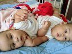 bayi-kembar-siam-adam-dan-malik-menunggu-waktu-operasi-pemisahan.jpg