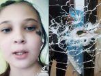 felicia-kononchuk-ditembak-tetangganya-di-kepala.jpg