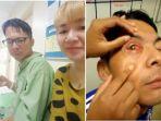 infeksi-mata-parah-pada-suami-christina-wei_20170205_160644.jpg