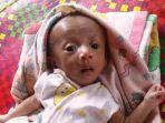 muhammad-al-farisi-5-bulan-bayi-bocor-jantung.jpg