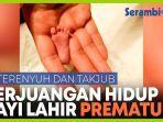 perjuangan-hidup-bayi-prematur-memenangkan-penghargaan-di-eropa.jpg