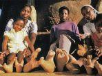 suku-vadoma-di-zimbabwe-memiliki-anggota-tubuh-menyatu.jpg