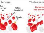 thalassemia_20151107_101426.jpg
