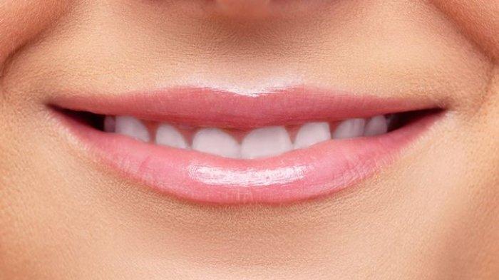 Bentuk Bibir