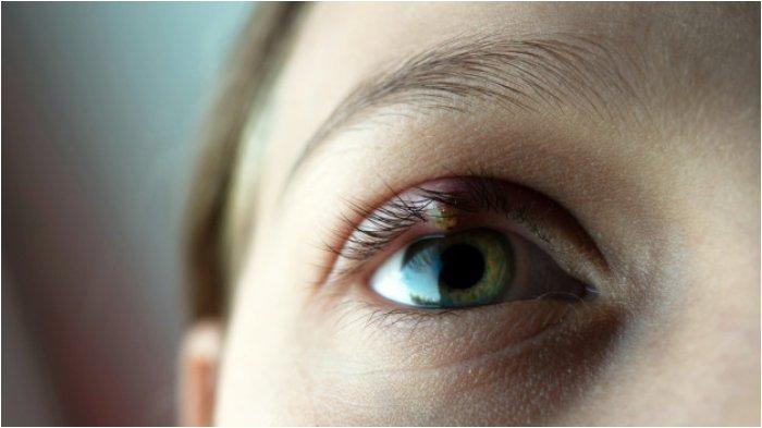 Cara Atasi Mata Bintitan, Efektif Bisa Kempes dalam Waktu Semalam