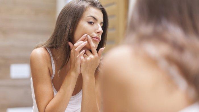 Simak 5 Cara Mencegah Jerawat, Tak Cukup hanya dengan Skincare