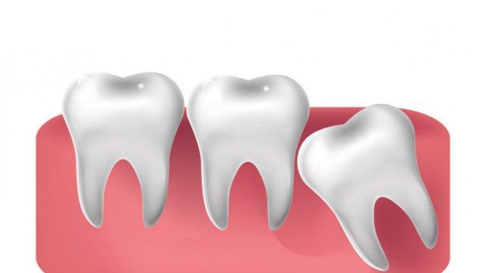Cara Mencegah Gigi Berlubang, Kurangi Konsumsi Makanan Manis dan Asam