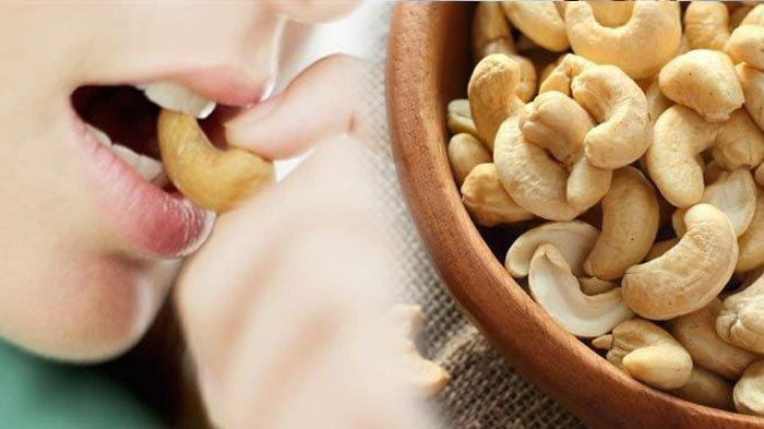 Berikut 5 Manfaat Kacang Mete Untuk Kesehatan, Termasuk Cegah Penyakit Batu Empedu