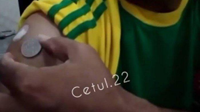 Bekas Suntikan Vaksin Covid-19 Pria Ini Ada Medan Magnetnya, Saksikan Videonya