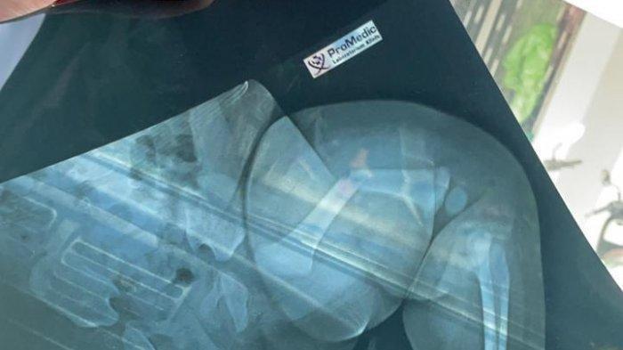 Kasus Ayah Kandung Aniaya Bayi Usia 4 Bulan, Buat Gempar Warga Permis Bangka Selatan