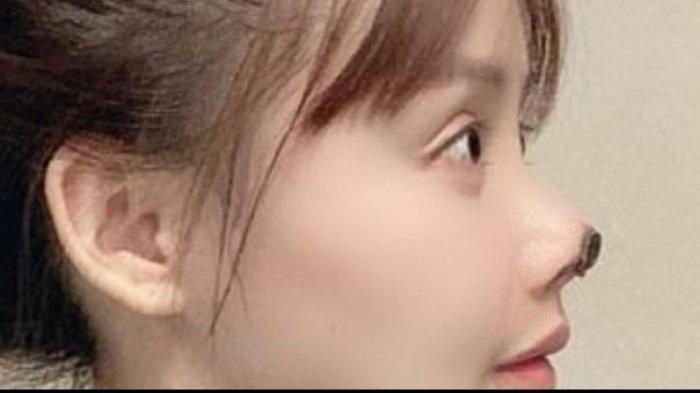 Gao Liu tunjukkan hidungnya yang membusuk (Sumber: Dailymail)