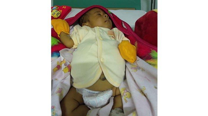 DUKA Kadek Arta, Bayinya Infeksi Hati dan Empedu di RS Sanglah, Istri Meninggal Saat Melahirkan
