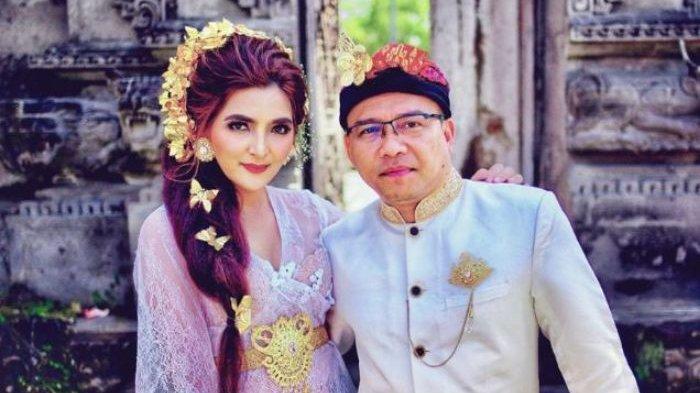 Profil Ashanty, Istri Anang Hermansyah Terinfeksi Covid-19, Idap Autoimun, Pernah Gejala Meningitis