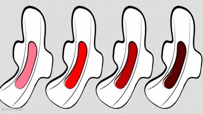 Warna Darah Menstruasi Menunjukkan Kondisi Kesehatan, Bisa Jadi Tanda Penyakit, Salah Satunya Kanker