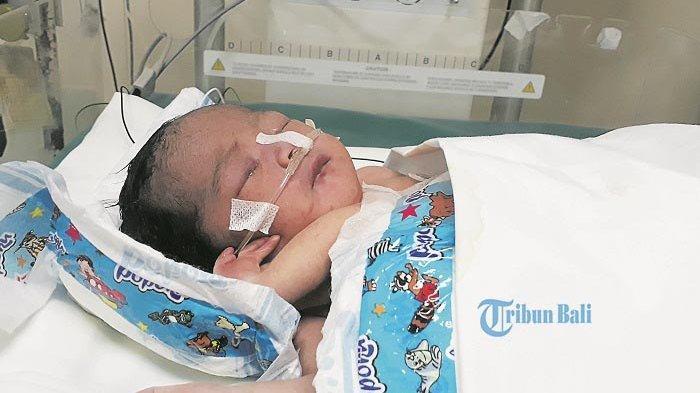 Luh Juni Menangis Lihat Kondisi Adiknya, Bayi Perempuan asal Buleleng Ini Miliki Empat Kaki & Tangan