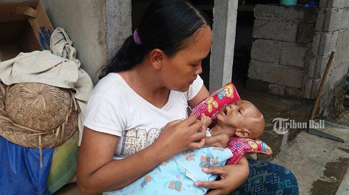 Mengharukan, Bayi Asal Klungkung Lahir Tanpa Pori, Gusti Ayu: Kalau Suhu Badannya Naik Pasti Nangis