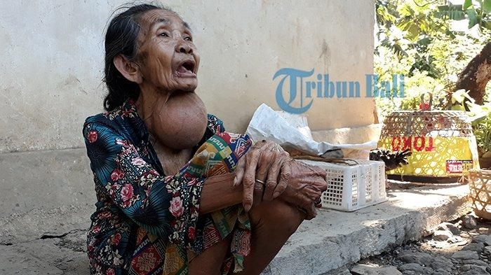 Nestapa Dadong Puspa Setelah Ditinggal Suami, Hidup di Gubuk & Tidur Hanya Beralas Tikar