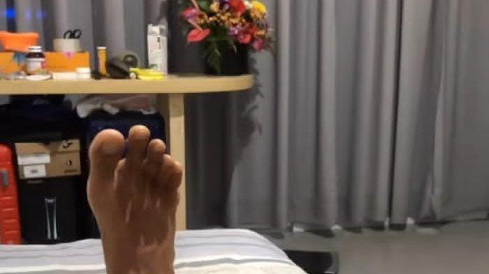 Kondisi kaki GDC saat dirawat tim fisioterapi di mes Bali United di Legian Badung Bali.