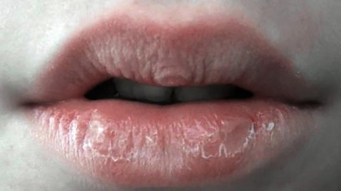Penyebab Benjolan di Bibir yang Terasa Nyeri, Mulai dari Virus Sampai Alergi