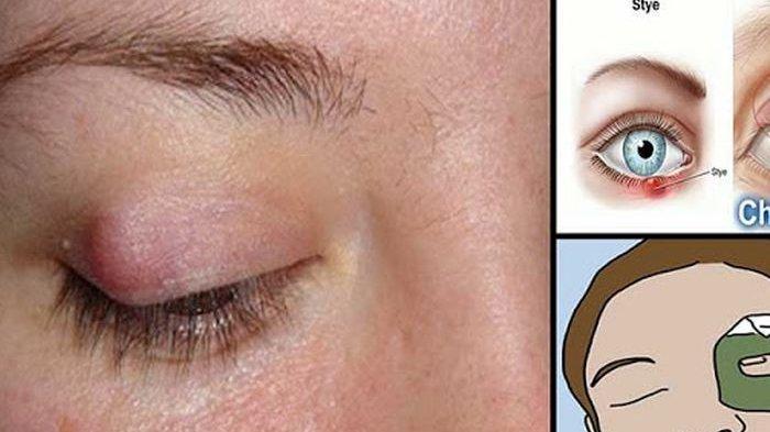 13 Penyebab Benjolan di Mata Karena Bintitan Dan Cara Agar Tak Menular ke Bagian Lain