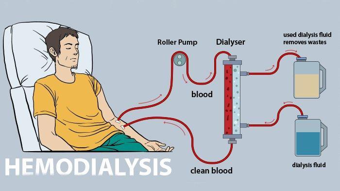Proses Hemodialisa dan Kapan Penderita Penyakit Ginjal Harus Cuci Darah
