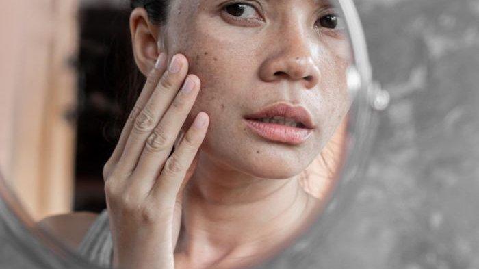 Hormon, Diet hingga Radiasi Cahaya Komputer, Berikut 5 Penyebab Flek Hitam di Wajah