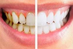 9 Kebiasaan Buruk yang Bisa Merusak Gigi, Merokok hingga Ngemil Keripik Kentang