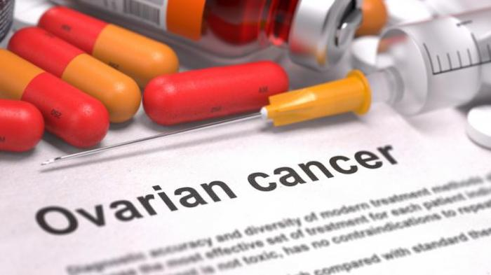 Deteksi Dini Kanker Ovarium dengan Mengetahui Tanda Ini, dari Perut Kembung hingga Mudah Lesu