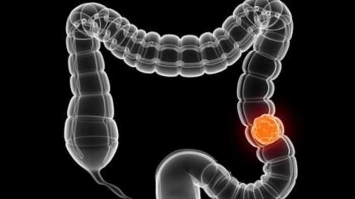 Waspada, 5 Jenis Makanan Ini Bisa Menjadi Penyebab Kanker Usus Besar, Apa Saja?