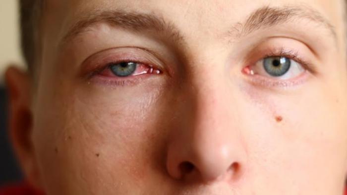 Tidak Perlu Khawatir, Ini 10 Penyebab Penglihatan Kabur pada Pagi Hari