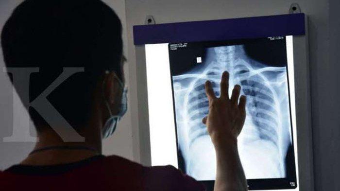 Ini Cara Alami Membersihkan Paru-paru, Perokok Wajib Tahu, Konsumsi Kunyit Hingga Ketukan Dada