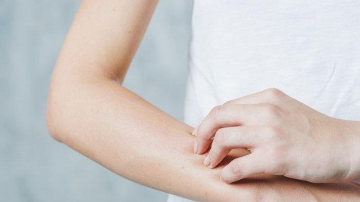 Ini Penyebab Penyakit Autoimun Lebih Banyak Menyerang Wanita daripada Pria