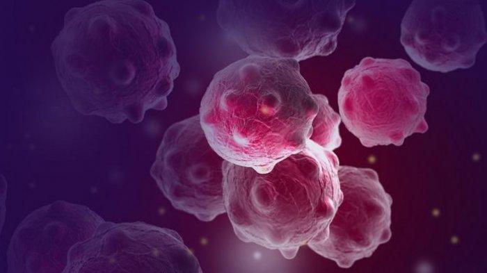 8 Gejala Awal Kanker yang Sering Dialami Penderitanya, Berat Badan Turun Drastis hingga Sering Demam