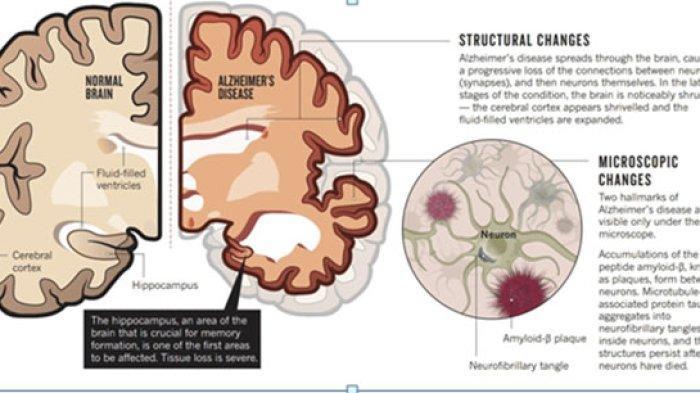 Memperingati Hari Alzheimer Sedunia, Mari Kita Ketahui Lebih Dalam Tentang Alzheimer