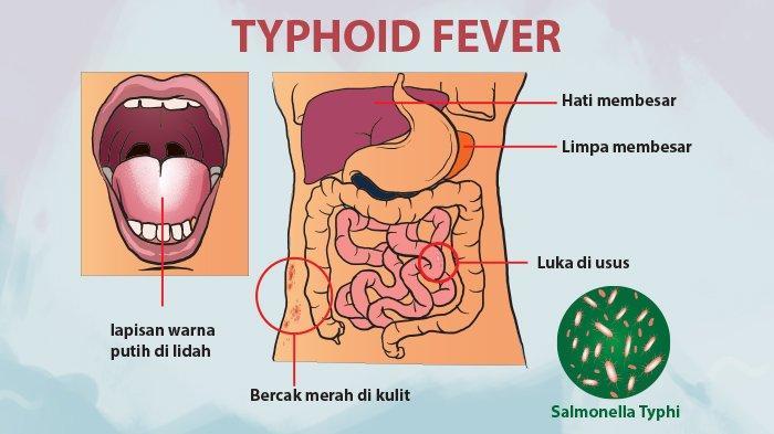 Jangan Salah, Tipes Bukanlah Penyakit Tifus