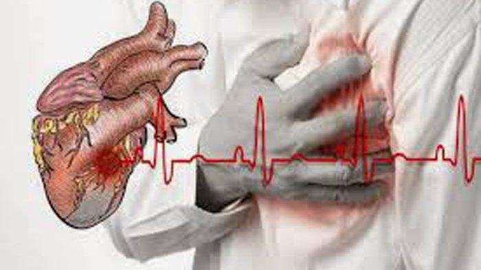 Tanda-tanda Serangan Jantung Tak Datang Mendadak, Hati-Hati Bila Lengan Terasa Lemah Dan Berat