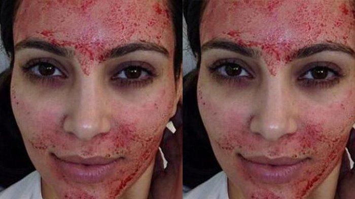 Hati-hati Jalani Facial Vampir, 2 Orang Malah Tertular HIV di Sebuah Klinik Spa di Amerika