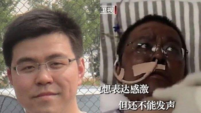 Dokter Hu Weifeng Meninggal Dunia, 4 Bulan Berjuang Melawan Covid-19 Hingga Kulit Wajah Menghitam
