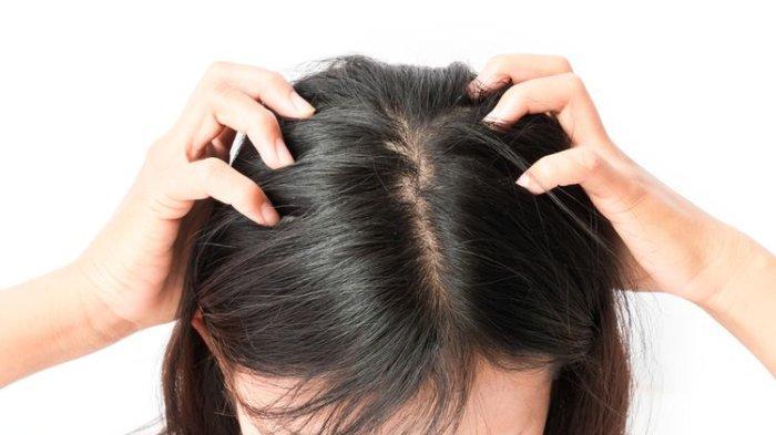 Tanda Rambut Terdapat Kutu Rambut dan 6 Cara Alami Menghilangkannya