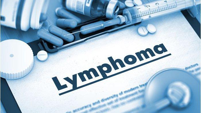 Mengenal Gejala dan Tahap Perkembangan Kanker Limfoma