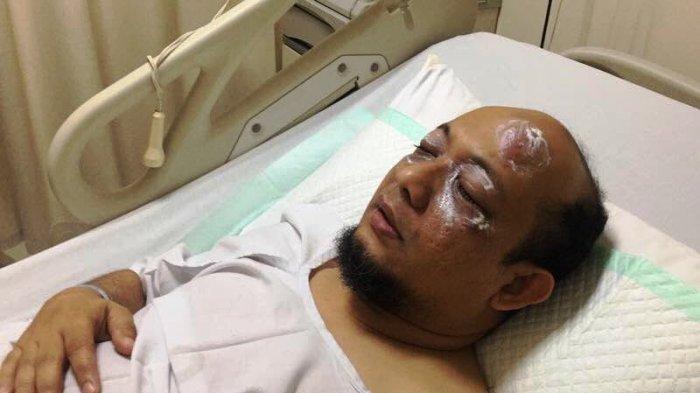 Novel Baswedan Ungkap Ada Jenderal Polisi yang Terlibat Penyiraman Air Keras ke Wajahnya!
