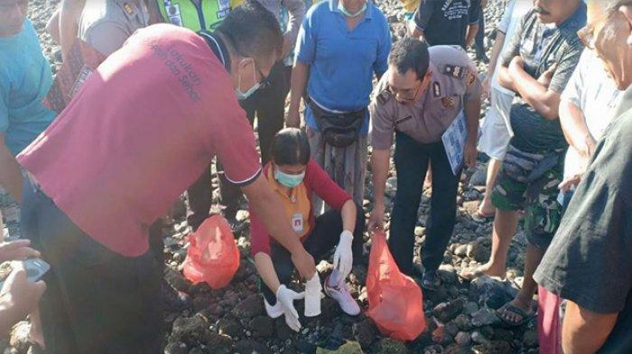 Dugaan Polisi dan Penjelasan Dokter Soal Temuan Gumpalan Tumor dan Rahim di Pantai Bondalem