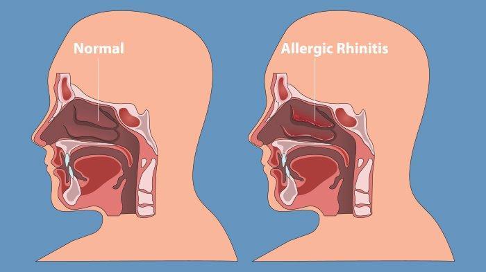 Segala Sesuatu Tentang Rhinitis Alergi: Gejala, Penyebab, dan Cara Mengobati