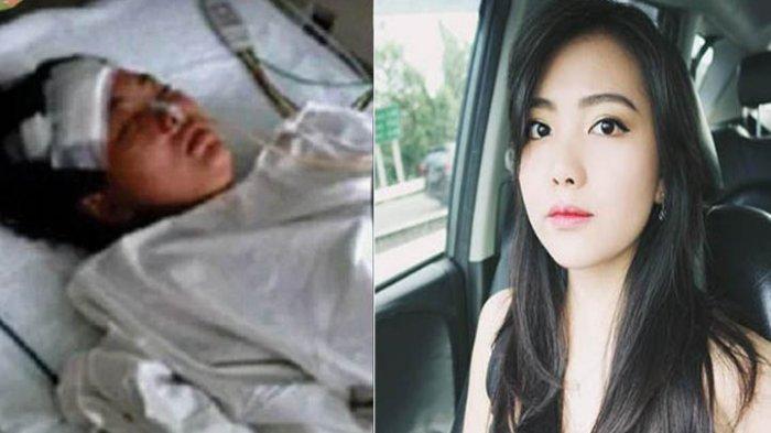 Nyaris Tewas Ditusuk Temannya yang Psikopat, Listya Magdalena Kini Jadi Youtuber Sukses di Indonesia
