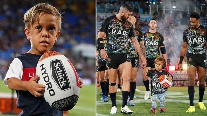 Viral Menangis Karena Di-bully, Quaden Bayles Dapat Dukungan Hingga Diundang ke Pertandingan Rugby