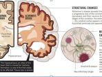 ilustrasi-struktur-otak.jpg