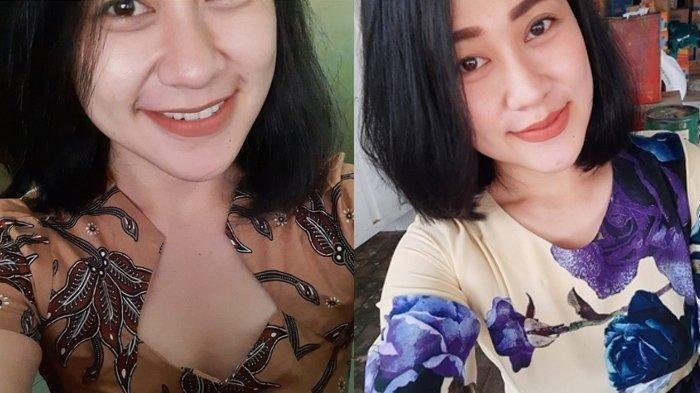 Eva Sofiana, Perawat Cantik yang Dibakar di Malang, 2020 Kulitnya Mulai Putih Pipi Lebih Tirus