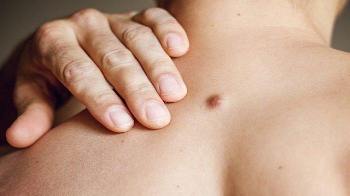 Obat Tradisional Sakit Bisul, Gunakan Bahan-bahan Ini dan Tunggu Hasilnya
