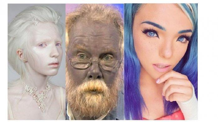Inilah 7 Orang yang Memiliki Kelainan Super Unik di Dunia, Ada yang Jadi Inpirasi Banyak Orang